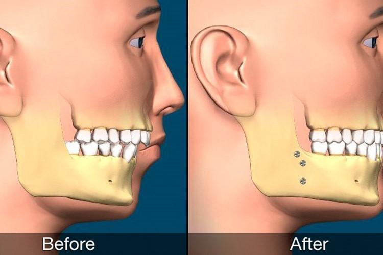 برخورداری از بهترین درمان ها در جراحی های دهان، فک و صورت