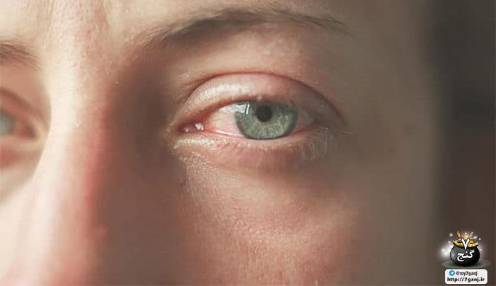 روش های خانگی برای کاهش پف چشم بعد از گریه